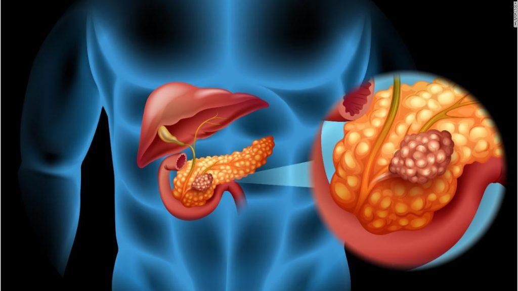 organos qiue afecta la diabetes